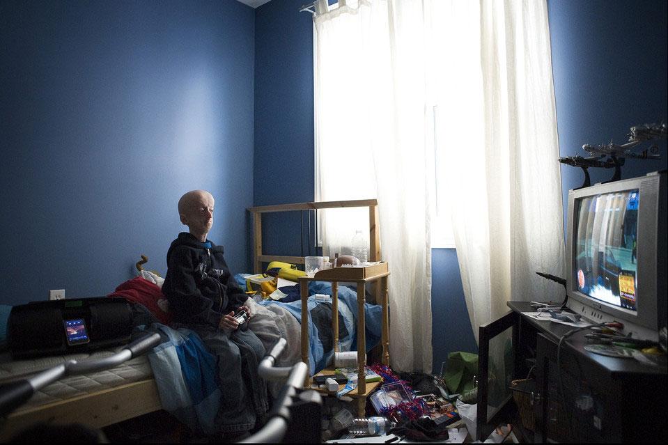 ребенок, у которого прогерия, играет в видеоигру