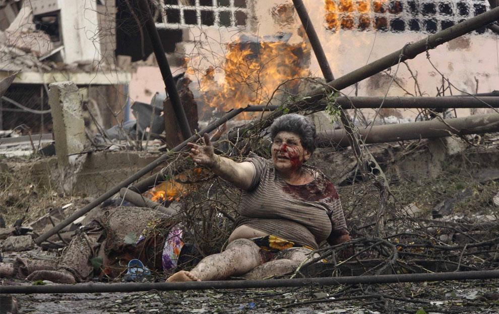 жертвы конфликта между Южной Осетией и Грузией, фото