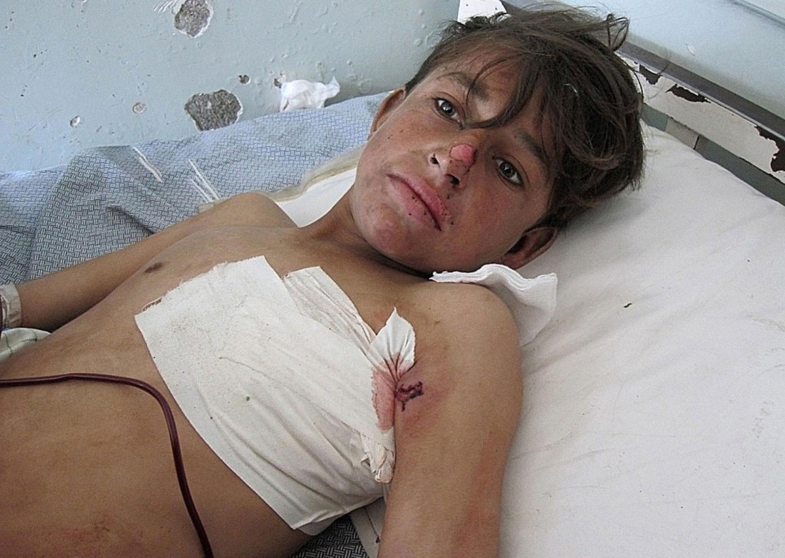 раненый ребенок в провинции Кунар