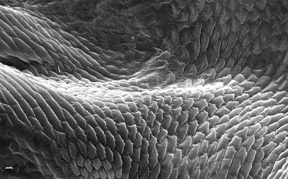 вошь под микроскопом, фото