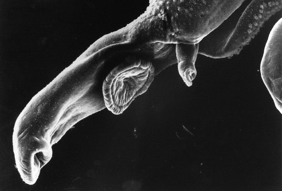 шистосом кровяной сосальщик под микроскопом, фото