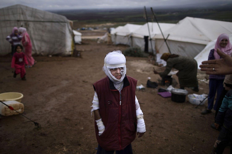 раненый ребенок Сирии, фото