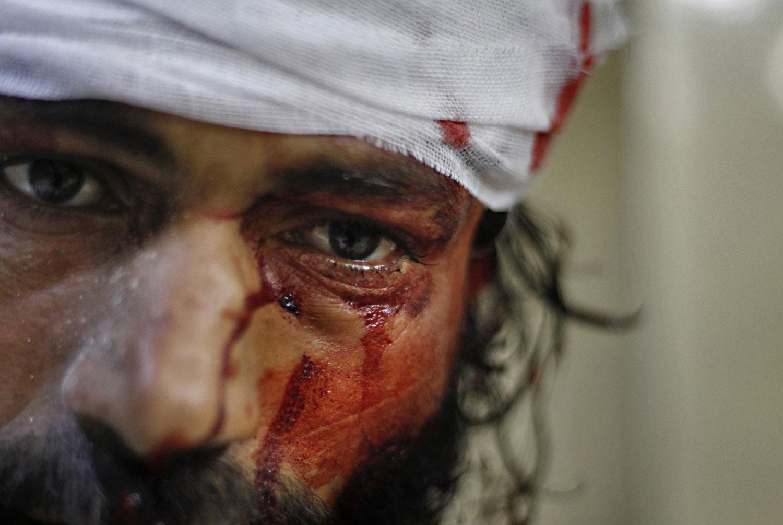 раненый мужчина в Алеппо, фото