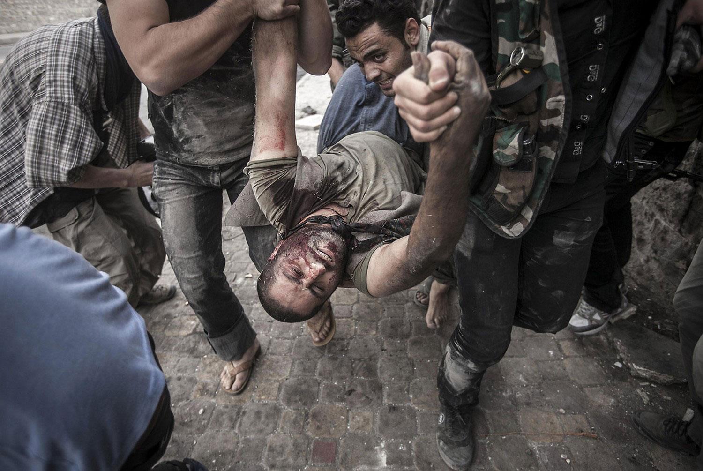 смертельно раненый в гражданской сирийской войне человек, фото