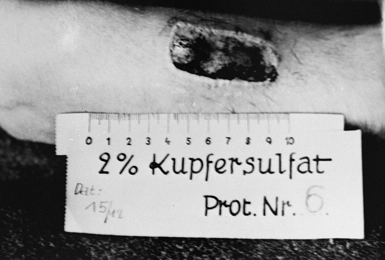 Жертва нацистских медицинских экспериментов, фото второй мировой войны