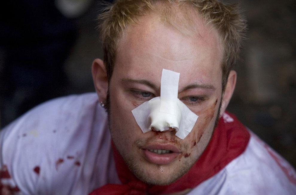 участники корриды получил травму от быка