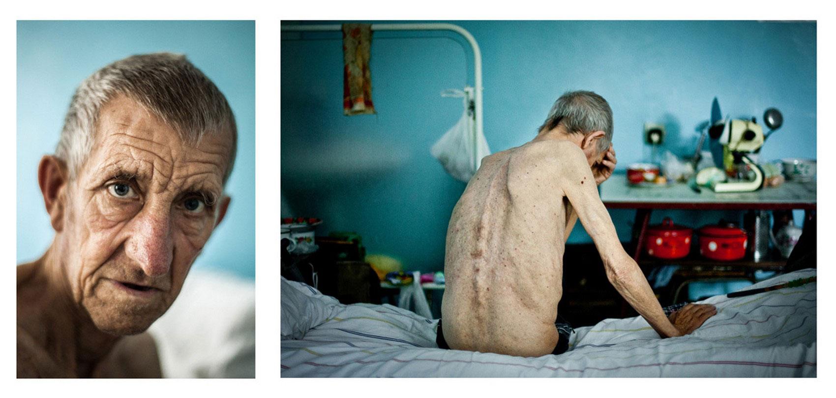 мужчина болеет туберкулезом, фотоконкурс