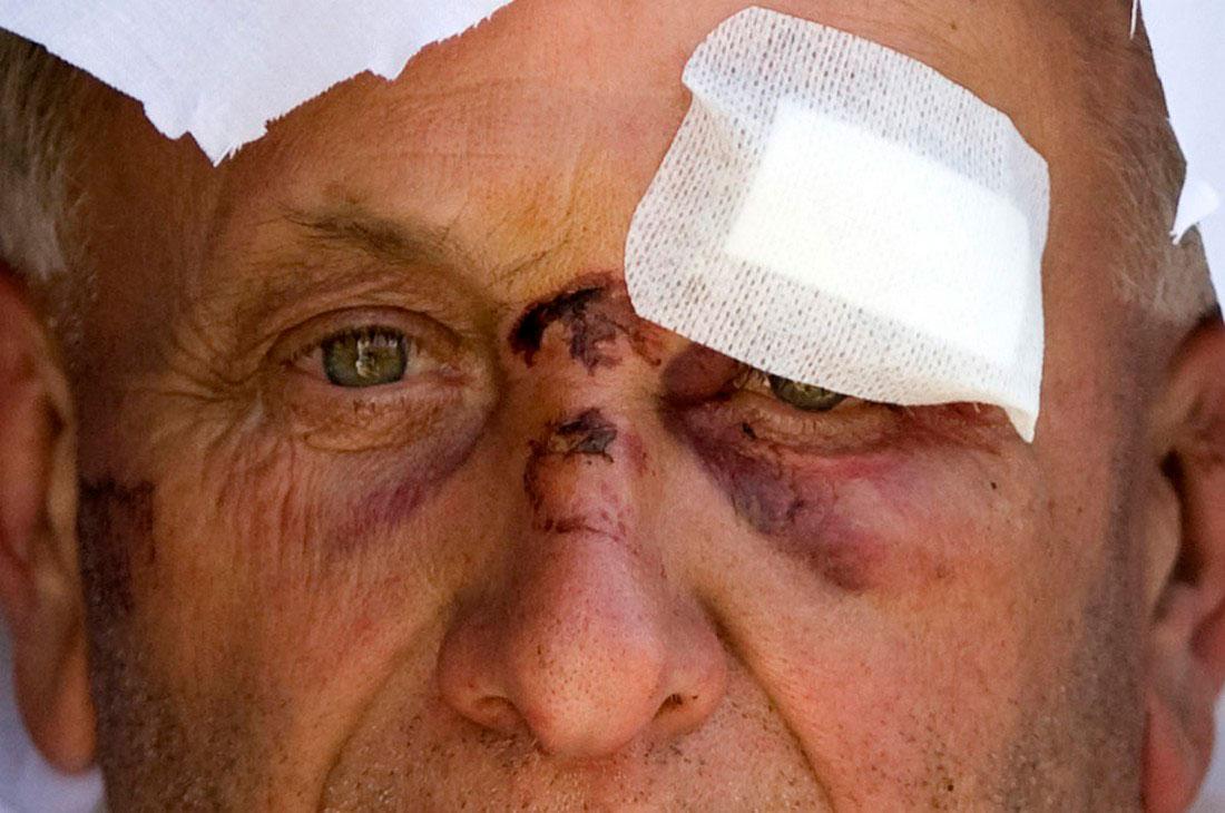 выживший мужчина в Италии, фото