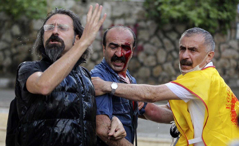 раненый участник протеста
