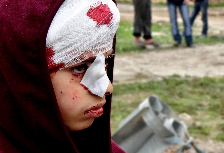 """/>Девочка, получившая ранение"""" width=""""990″/>Девочка, получившая ранение во время воздушного налета на поселок Ханану в Алеппо.</p> <p><img src="""