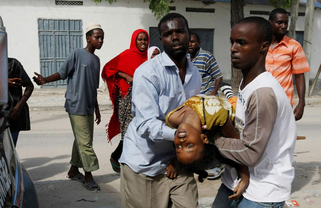 раненый во время перестрелки ребенок, Сомали