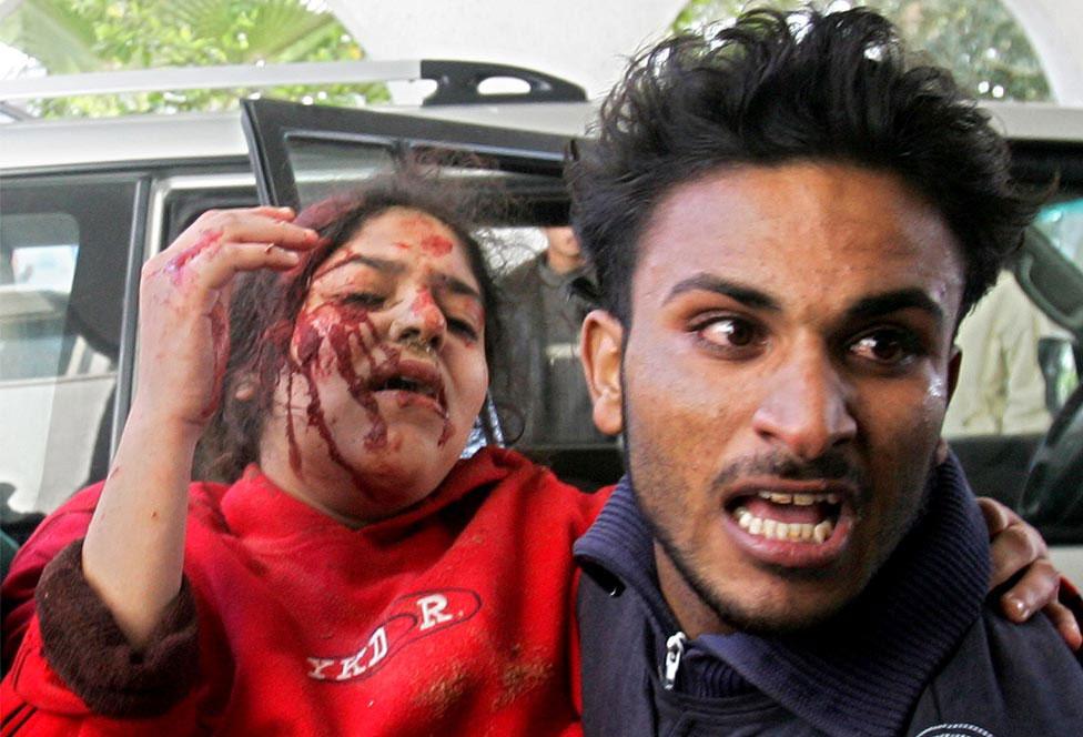 раненая палестинская девочка, фото