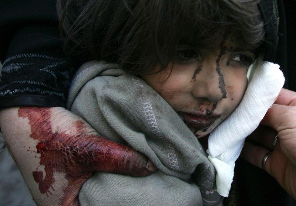 Раненый ребенок в больнице, фото