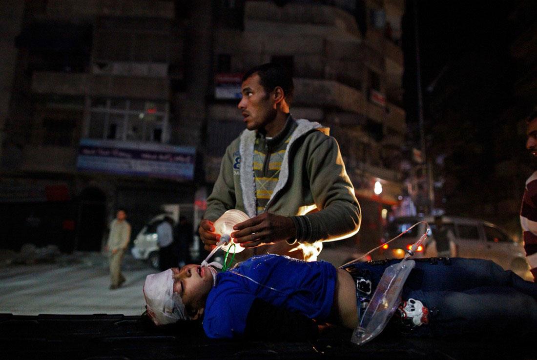 пострадавшая девочка от пулеметных очередей, фото, Сирия