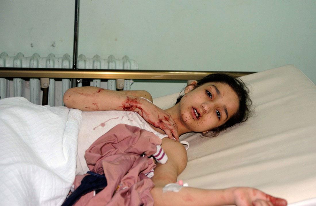 Девочка, пострадавшая в результате взрыва, фото, Сирия