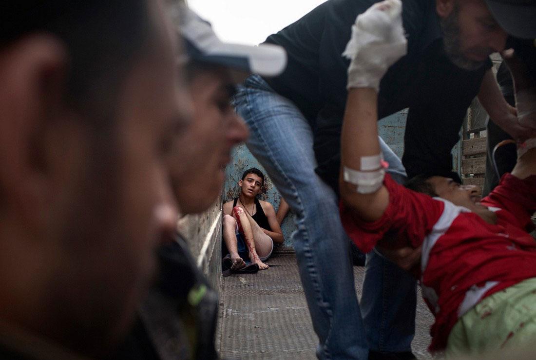 Раненые сирийские жители, фото, Сирия война