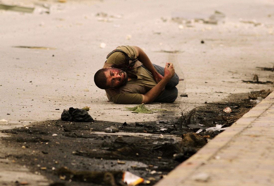 Мужчина подстреленный снайпером, фото, Сирия