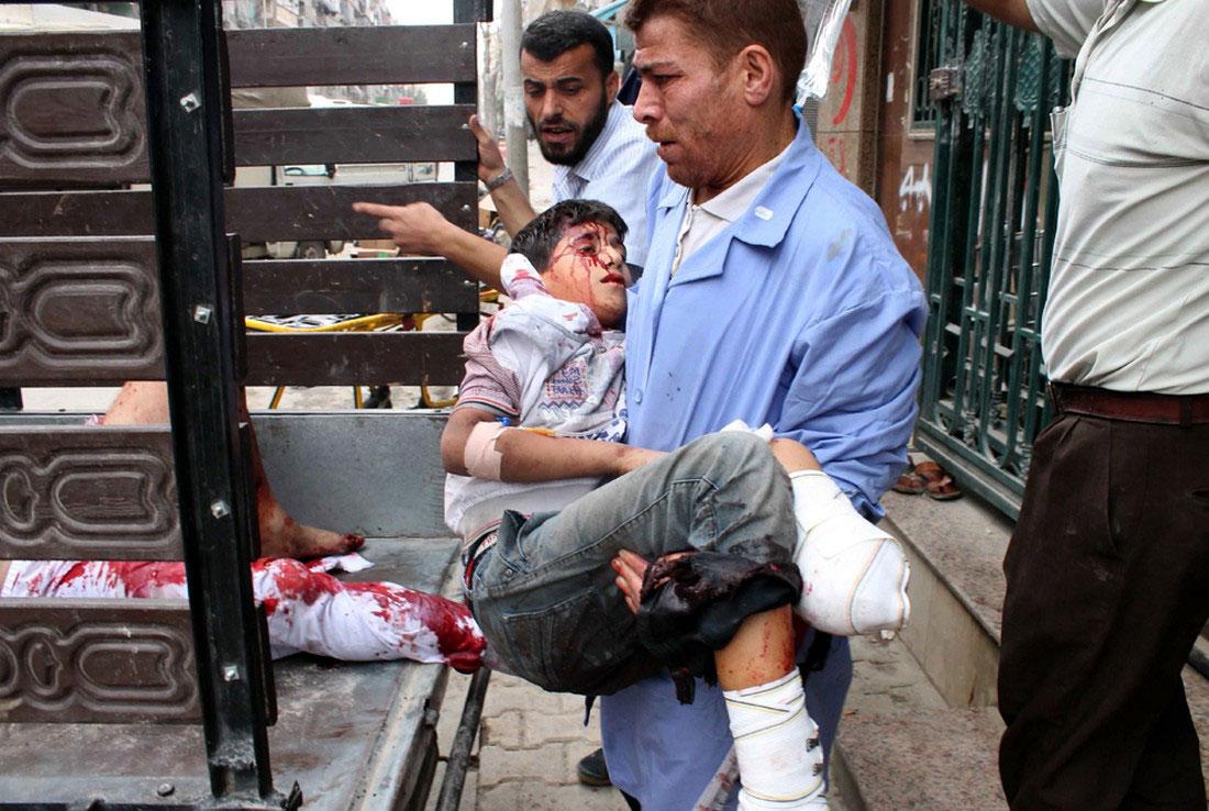 Раненый ребенок в больнице, фото, Сирия
