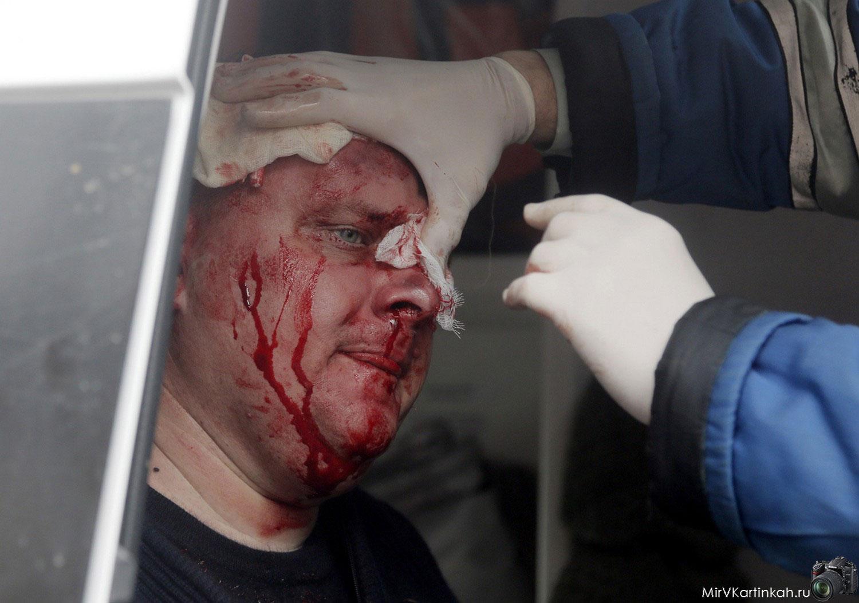 раненый мужчина