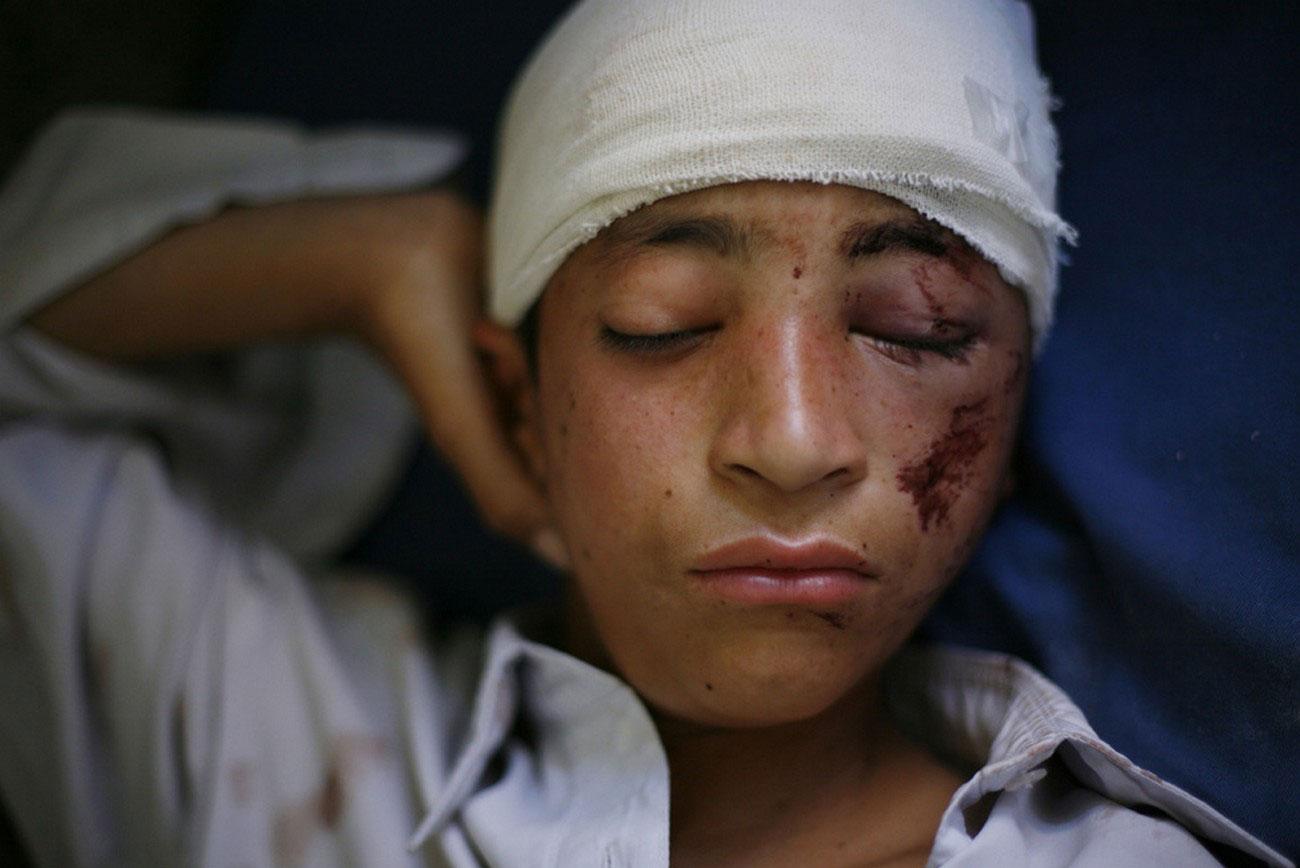 мальчик ранен после авианалета в Пакистане