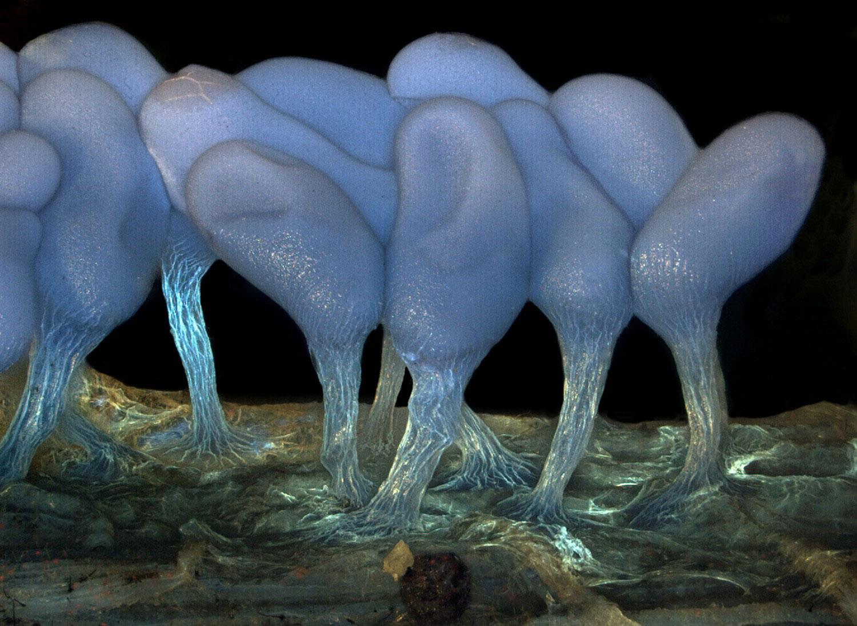 спорангии Arcyria stipata, фото под микроскопом